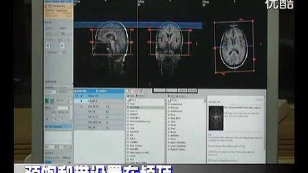 颅脑MRA扫描技术