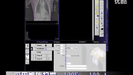 胸部CT的增强扫描