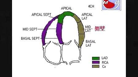 下壁,后壁及侧壁心肌梗塞的超声心动图 - 张多能