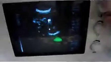 B超操作视频
