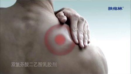 后背疼痛是什么原因扶他林最正确的选择