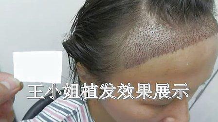 长沙医院可以做毛发移植手术