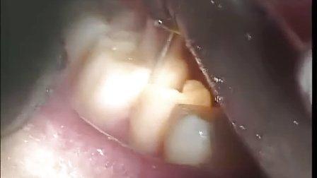 口腔实践技能视频-离体磨牙复面洞制备术(第二站基本操作技能)
