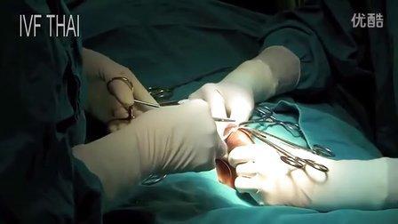 苏查达医生 手术取精视视频