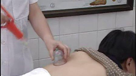 卫生部医学视听教材腧穴疗法