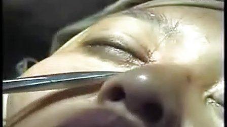 美尔贝在开眼角手术现场