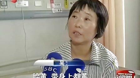肝门胆管癌资料有望  胆红素高出正常值100倍 患者通体发黄 130909 新闻眼