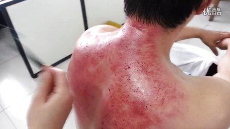 颈背部 刮痧 梅花针 拔罐
