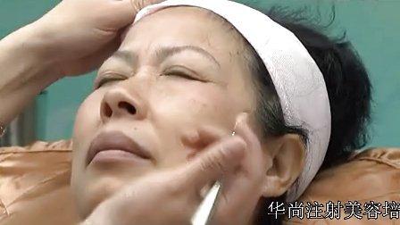 保妥适肉毒素祛除抬头纹 注射美容方法培训
