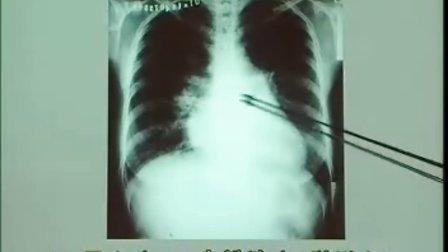 放射线检查
