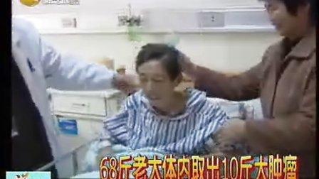 68斤老太体内取出10斤大肿瘤