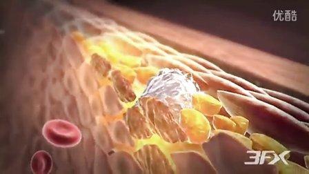 3D动画-糖尿病性周围血管性疾病{www.nanyangtumour.com.cn}