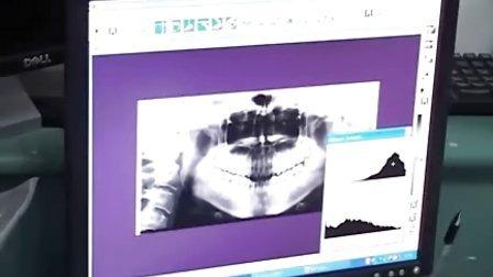 口腔X线检查