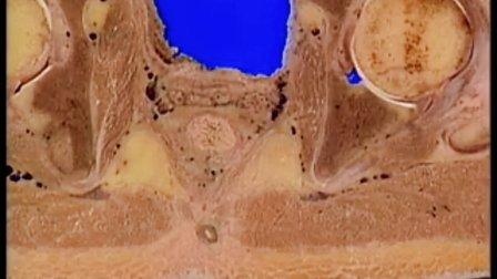 卫生部医学视听教材-断层解剖学-DC007 男性盆部断层解剖