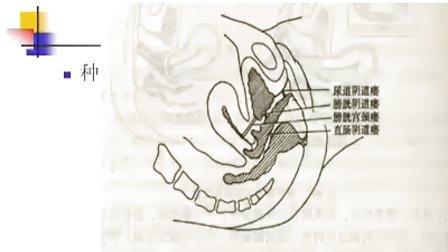 妇产科学-女性生殖器官损伤性疾病02