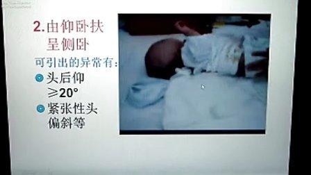 婴儿脑瘫倾向的家庭自测(任世光)
