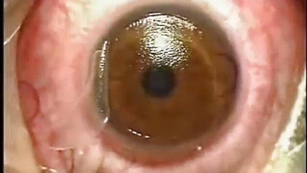 可怕的治近视的激光手术