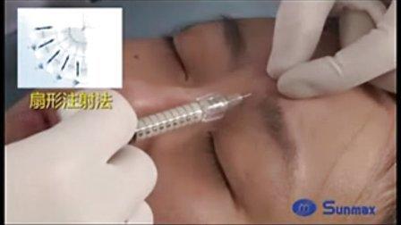 肉毒素祛除眉间纹实拍