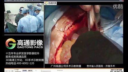 贵州省人民医院(开腹手术)
