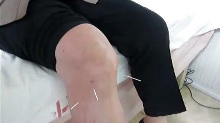 膝骨关节炎针灸治疗(上海中医药大学附属曙光医院骨伤科)