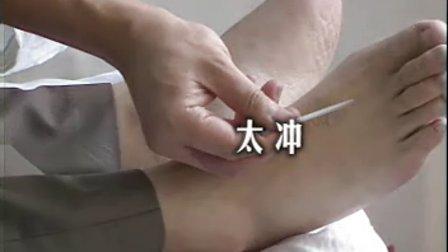 [常见头痛病的针灸治疗].朱国祥
