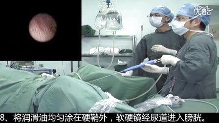 输尿管软硬镜手术视频