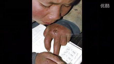 中国贫困山区的真实生活——王善伟制作