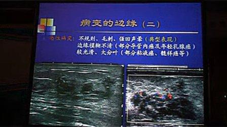 乳腺良恶性病变超声图像特征——陈文北京大学第三医院超声诊断科