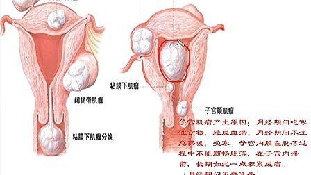 子宫肌瘤 乳腺增生到底是怎么得上的?-女性健康讲座(3)