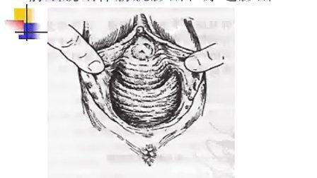 妇产科学-女性生殖器官损伤性疾病