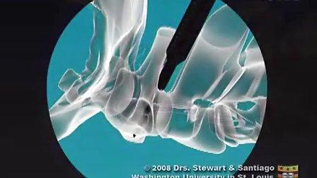寰枢椎钉棒系统内固定