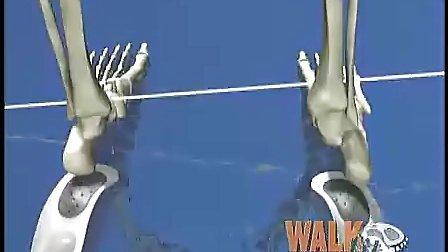 成人儿童矫正鞋垫扁平足高足弓 X O形腿八字脚
