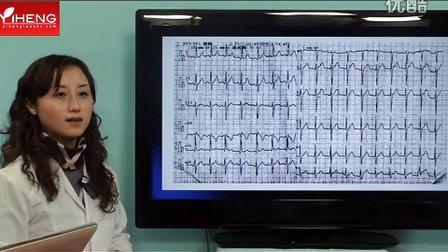 心电图(2)