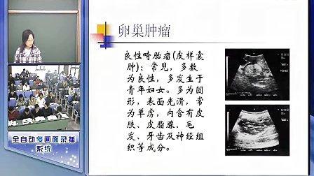 60四川大学诊断学
