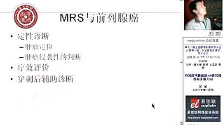 前列腺癌 MR诊断与研究进展01 01第一集 前列腺癌 MR诊断与研究进展