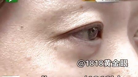 一次眼袋手术 造成眼睛凹陷?