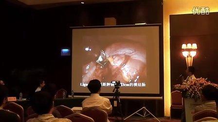南宁腔镜年会讲演-单孔腹腔镜多器官切除术