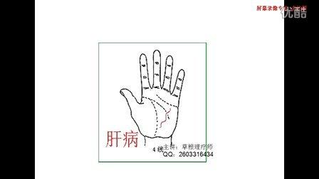 手纹健康线