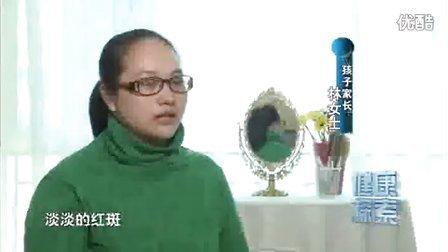 小贺快讯-第十九期 血管瘤之战,海绵状血管瘤