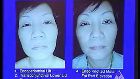 整形外科学视频140 130 第一百三十集 中面部提升(七)