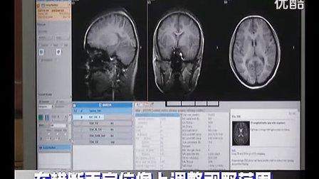 颅脑的常规MRI扫描技术