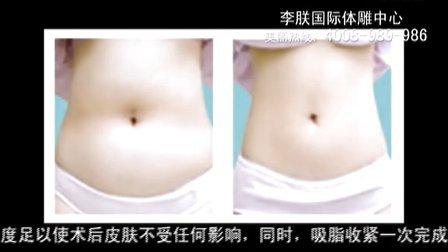 腰腹部吸脂手术需要多少钱,腹部吸脂术费用多少钱-北京李朕国际体雕中心