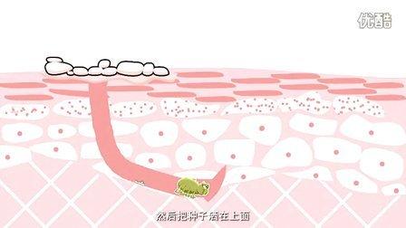 青春痘图片 如何去除青春痘 治疗青春痘的方法