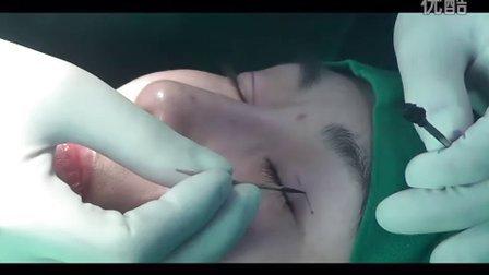 割双眼皮过程,埋线双眼皮注意事项-李朕国际体雕中心