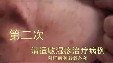 脖子湿疹症状图片