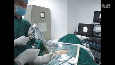 腰椎间盘突出 PLED椎间孔镜手术-荆州津汇医院