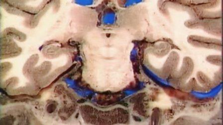 颅脑冠状断