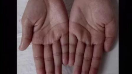皮肤病的诊断与治疗