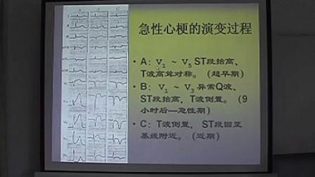 心电图系列讲座(3)非压缩版