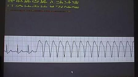 心电图系列讲座(6)